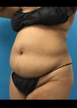 Liposuction Gallery - Patient 46613004 - Image 1