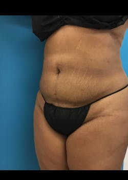 Liposuction Gallery - Patient 46613004 - Image 2