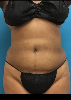Liposuction Gallery - Patient 46613004 - Image 4