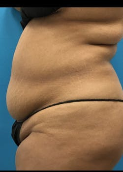 Liposuction Gallery - Patient 46613004 - Image 5