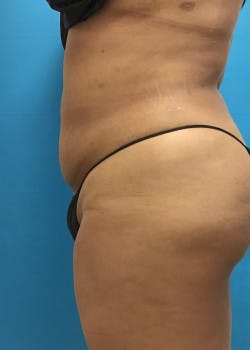 Liposuction Gallery - Patient 46613004 - Image 6