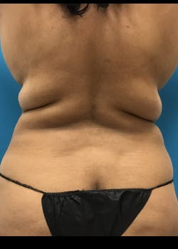 Liposuction Gallery - Patient 46613004 - Image 7