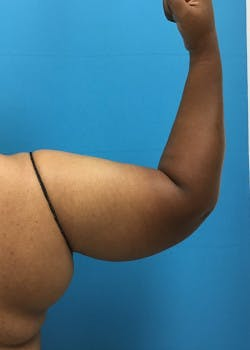Liposuction Gallery - Patient 46613022 - Image 1