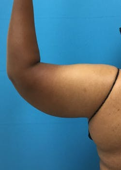 Liposuction Gallery - Patient 46613022 - Image 3