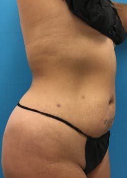 Liposuction Gallery - Patient 46613027 - Image 1