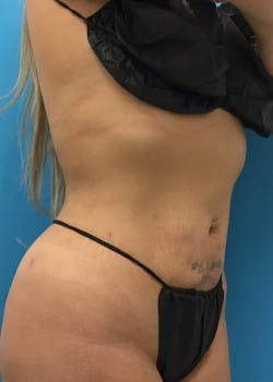 Liposuction Gallery - Patient 46613027 - Image 2