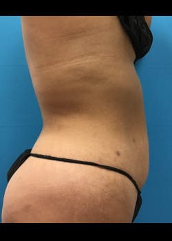 Liposuction Gallery - Patient 46613027 - Image 3