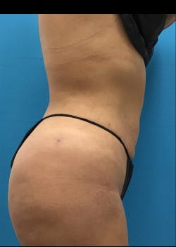Liposuction Gallery - Patient 46613027 - Image 4