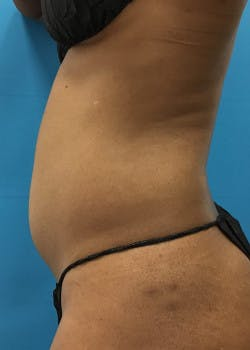 Liposuction Gallery - Patient 46613043 - Image 1