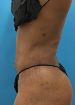 Liposuction Gallery - Patient 46613043 - Image 2