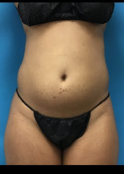 Liposuction Gallery - Patient 46613043 - Image 3