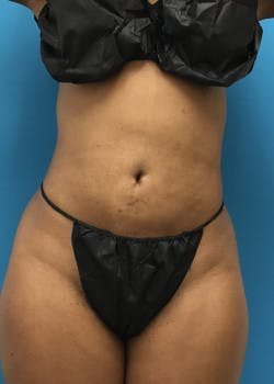 Liposuction Gallery - Patient 46613043 - Image 4