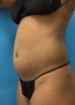 Liposuction Gallery - Patient 46613043 - Image 5