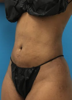 Liposuction Gallery - Patient 46613043 - Image 6