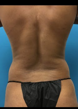 Liposuction Gallery - Patient 46613043 - Image 7