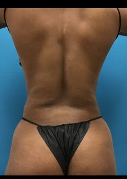 Liposuction Gallery - Patient 46613043 - Image 8