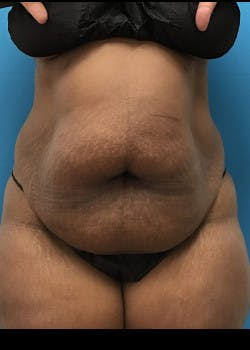 Liposuction Gallery - Patient 46613052 - Image 1