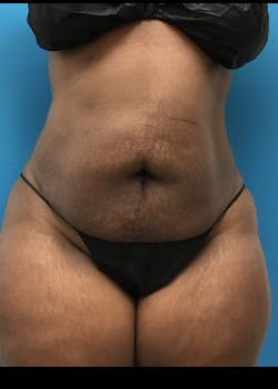 Liposuction Gallery - Patient 46613052 - Image 2