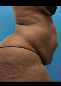 Liposuction Gallery - Patient 46613052 - Image 3