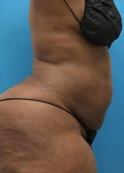 Liposuction Gallery - Patient 46613052 - Image 4