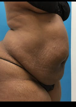 Liposuction Gallery - Patient 46613052 - Image 5