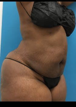 Liposuction Gallery - Patient 46613052 - Image 6