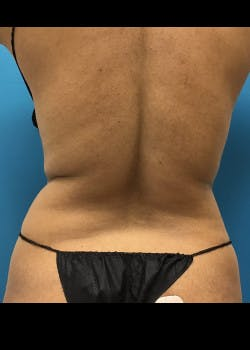 Liposuction Gallery - Patient 46613059 - Image 1