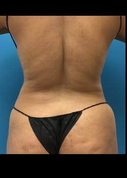 Liposuction Gallery - Patient 46613059 - Image 2