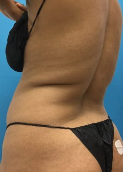 Liposuction Gallery - Patient 46613059 - Image 3
