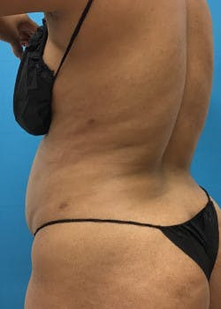 Liposuction Gallery - Patient 46613059 - Image 4