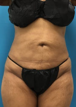 Liposuction Gallery - Patient 46613069 - Image 2