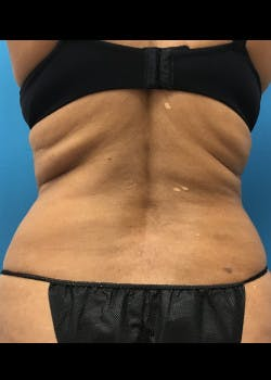 Liposuction Gallery - Patient 46613069 - Image 3