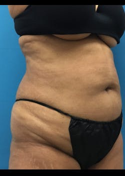 Liposuction Gallery - Patient 46613069 - Image 5