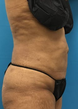 Liposuction Gallery - Patient 46613069 - Image 6