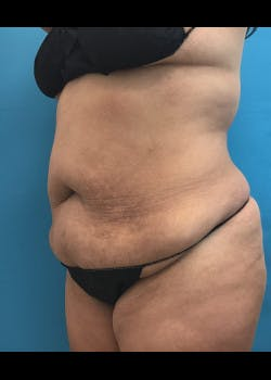 Liposuction Gallery - Patient 46613077 - Image 1
