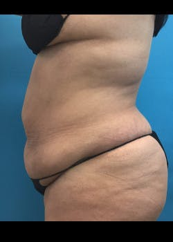 Liposuction Gallery - Patient 46613077 - Image 5