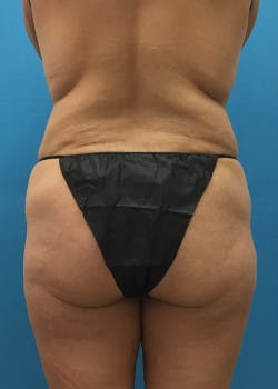 Liposuction Gallery - Patient 46613080 - Image 1