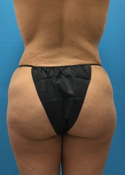 Liposuction Gallery - Patient 46613080 - Image 2