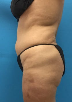 Liposuction Gallery - Patient 46613080 - Image 3