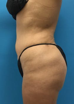 Liposuction Gallery - Patient 46613080 - Image 4