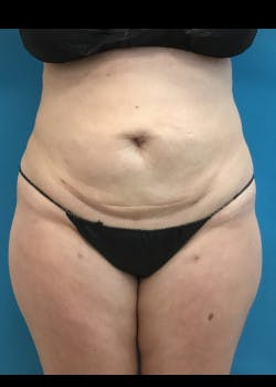 Liposuction Gallery - Patient 46613088 - Image 2