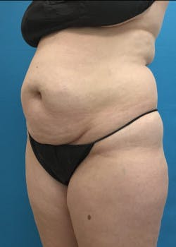 Liposuction Gallery - Patient 46613088 - Image 3