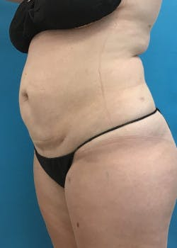Liposuction Gallery - Patient 46613088 - Image 4