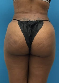 Liposuction Gallery - Patient 46613129 - Image 2