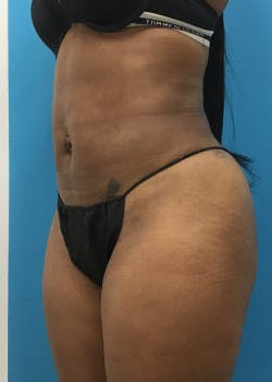 Liposuction Gallery - Patient 46613129 - Image 4