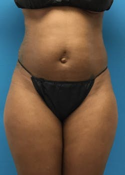 Liposuction Gallery - Patient 46613129 - Image 5