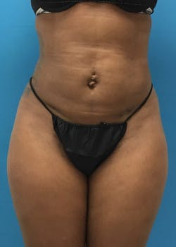 Liposuction Gallery - Patient 46613129 - Image 6