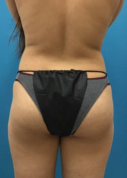 Liposuction Gallery - Patient 46613139 - Image 1