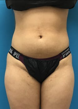 Liposuction Gallery - Patient 46613139 - Image 5