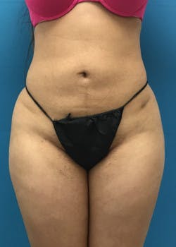 Liposuction Gallery - Patient 46613139 - Image 6